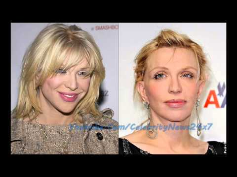 Courtney Love Plastic Surgery Before And After Hd Youtube