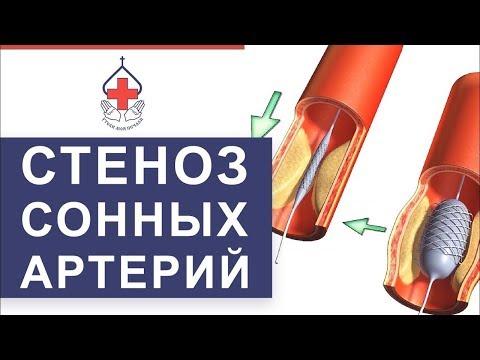 💤 Уникальный метод лечения атеросклероза сонных артерий. Лечение атеросклероза сонных артерий. 12+