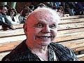 Тяжелобольной Моисеев живет в нищете на подачки друзей и поклонников