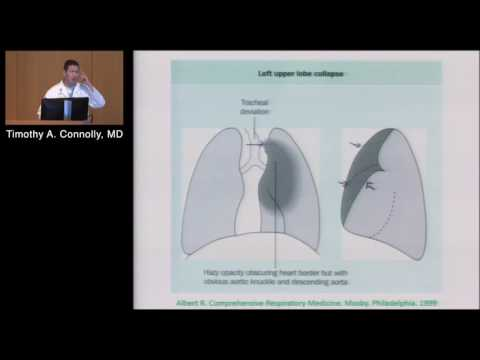 Pulmonary Imaging (Timothy Connolly, MD) Aug. 24, 2016