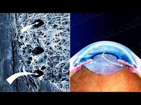 Glaucoma ad angolo aperto terapia con trabeculoplastica laser (www.oculisticaTV.it)