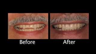 Cosmetic Dentistry Calabasas | The Importance Of Function Thumbnail