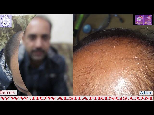 Karishma Hair Oil and Spray