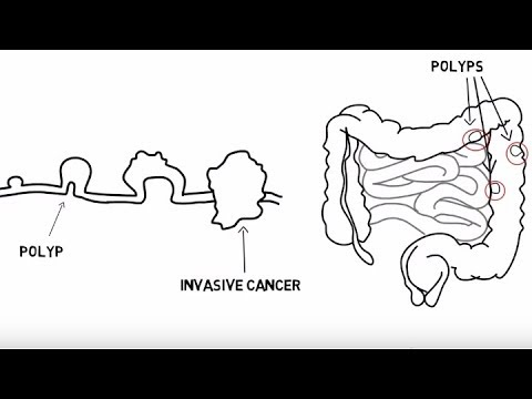 The Basics Of Colorectal Cancer (5 W's)