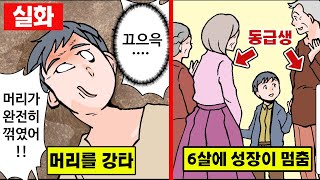 [실화] 뇌를 다쳐 6살에 성장이 멈춰버린 남자 [만화][영상툰]