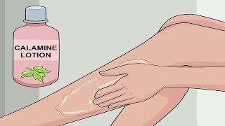 Soigner les piqûres de puces avec des remèdes éprouvés