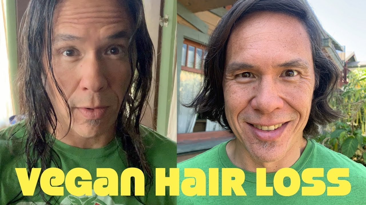 Shocking Vegan Hair Loss: Ryan's Hair Gone!