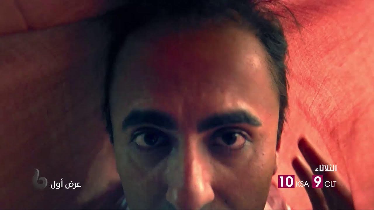 أيوشمان كورانا يواجه الكثير من العقبات بسبب مشاكل الصلع في #BALA