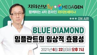 블루다이아몬드 임플란트의 임상적 효용성 - 전인성 원장
