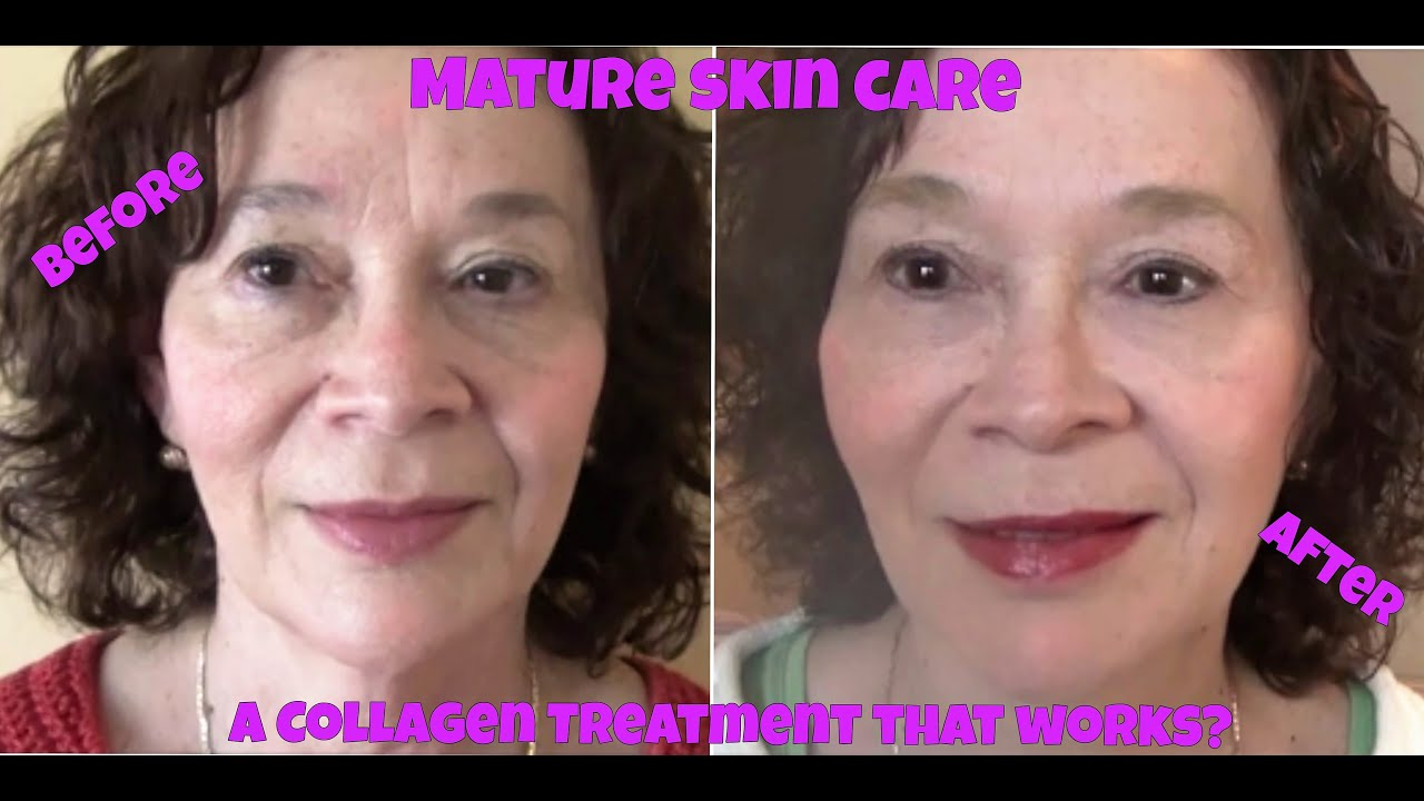 Mature Skin Care (ages 50+) To Treat & Protect Aging Skin With Ahas &  Collagen  Youtube
