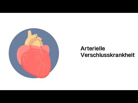 Arterielle Verschlusskrankheit AVK - Erkrankungen der Gefäße und des Kreislauf