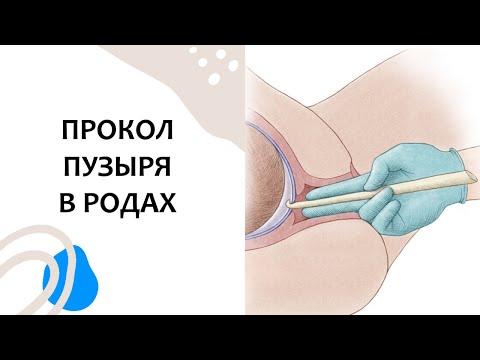 Прокол пузыря для родовозбуждения проводится по строгим медицинским показаниям.