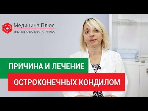 Остроконечные кондиломы. 🔍 Что такое остроконечные кондиломы, каковы их признаки и пути лечения. 12+