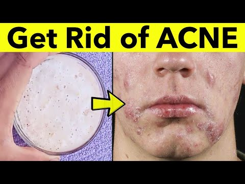 How to get rid of Acne | Acne Treatment | Best Home Remedy for Pimples