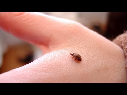 ☀what causes scabies, how to kill scabies on bedding, how to, Cephalic Vein