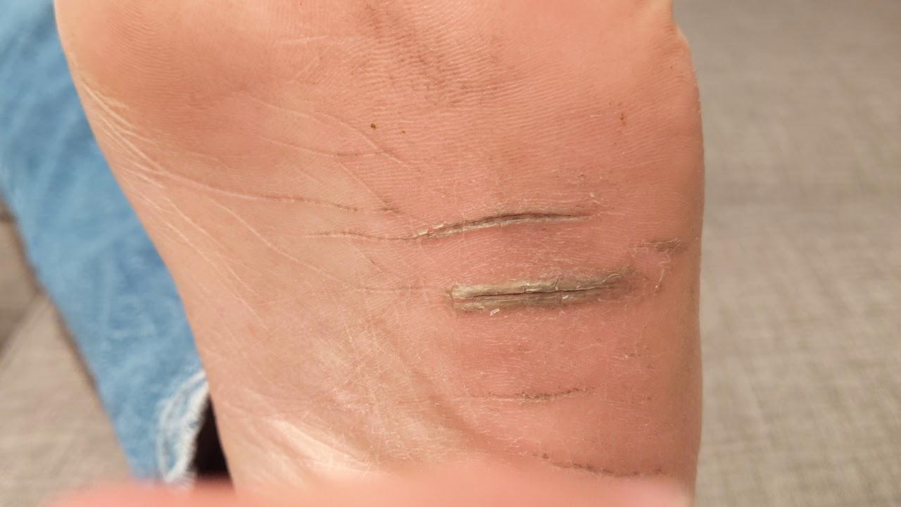 cracked skin on bottom of feet