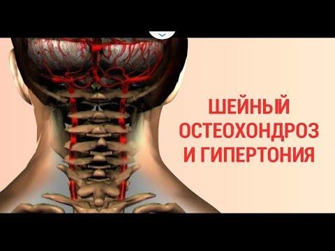 видео: Гипертония и шейный остехондроз