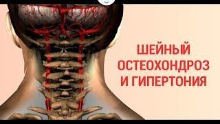 Гипертония и шейный остехондроз