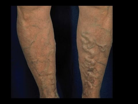 essential-oils-for-varicose-veins,-get-rid-of-varicose-veins,-how-do-you-get-rid-of-varicose-veins