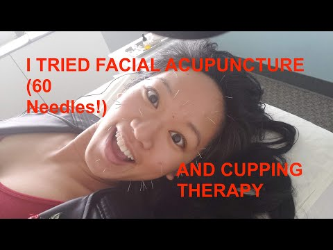 Denver's Best Facial Acupuncture and Cupping Therapy Treatments