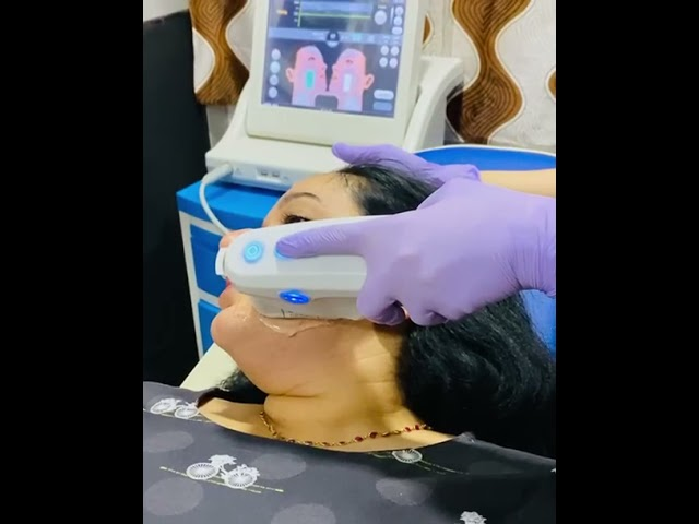 Face Laser Hair Reduction