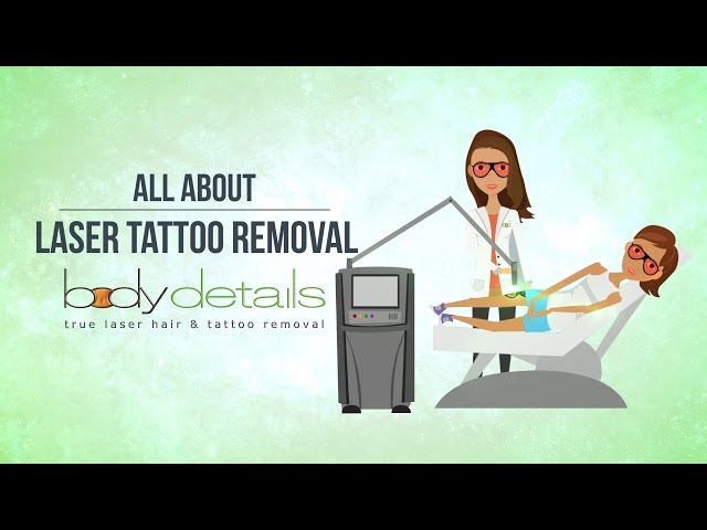 All About Laser Tattoo Removal | Body Details