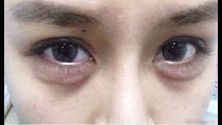 Mẹo chữa quầng thâm mắt và bọng mắt cực hiệu quả