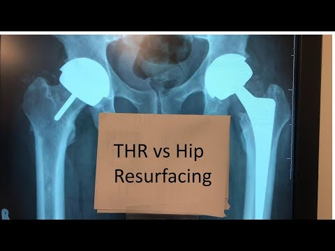 Difference Between Hip Resurfacing And Total Hip Replacement