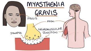 Eyelid ptosis: physical examination.