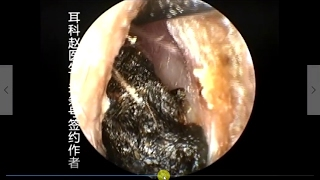 Earwax Removal, Extractions Black Huge and Hard EXTRACT by hook 黑色坚硬耳屎大合集 外耳道挖耳屎清理
