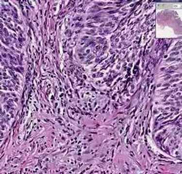 Histopathology Bladder --Urothelial carcinoma Grade I
