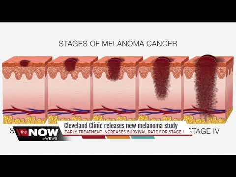 First of its kind study by Cleveland Clinic highlights importance of early melanoma treatment