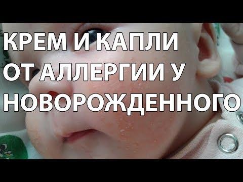 Крем и капли от аллергии у новорожденного