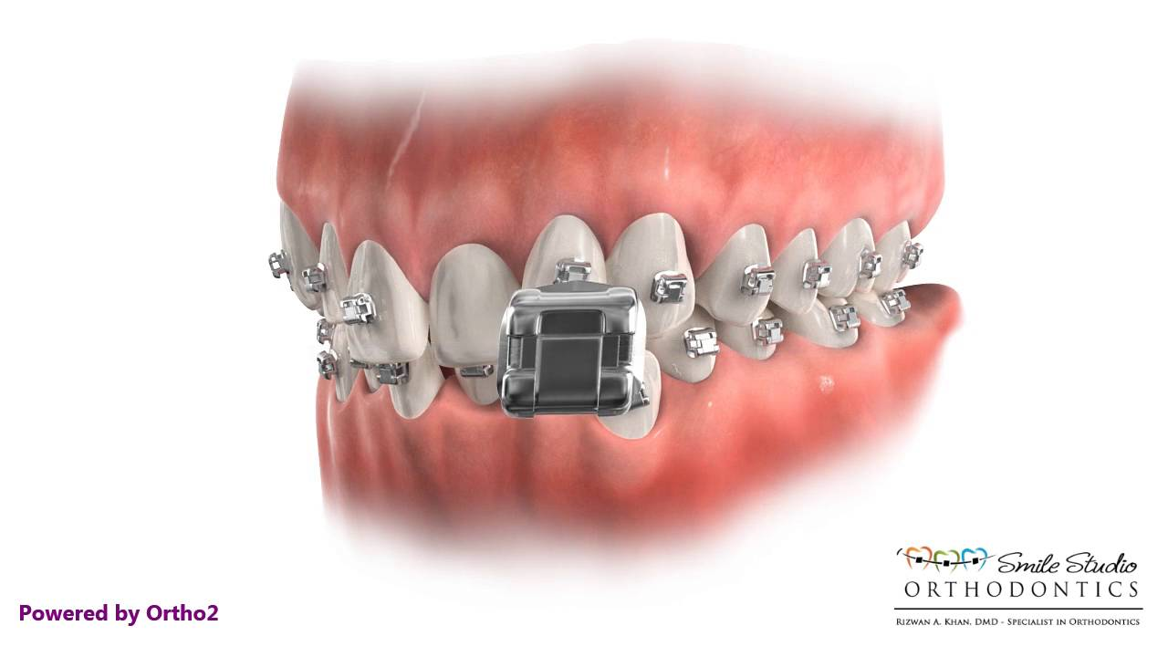 how to make brackets for braces