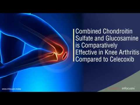 Glucosamine Is Effective Compared To Celecoxib Combination Of Chondroitin Sulfate For Knee Arthritis