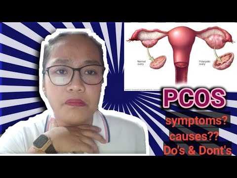 pcos|-causes,-symptoms-,do's-&-dont's-(my-story)