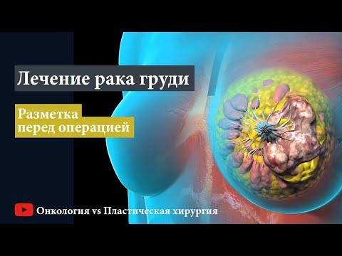 Лечение рака груди: разметка перед онкопластической резекцией