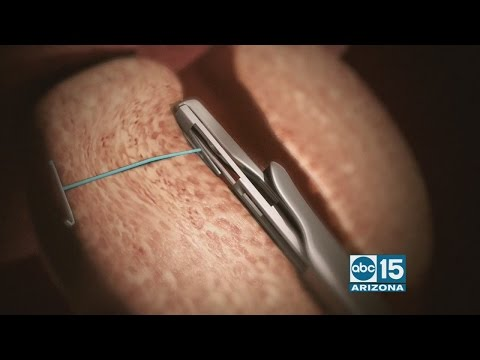 Affiliated Urologists talk about treatment for men with enlarged prostate
