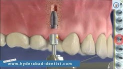 Replacing Failed Dental Implant | Multiple Tooth Implants Hyderabad
