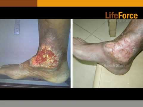 Non-Healing Ulcers Treatment, Causes, Diagnosis, Homeopathic Treatment