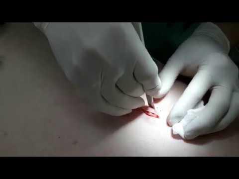 Удаление жировика атеромы на спине