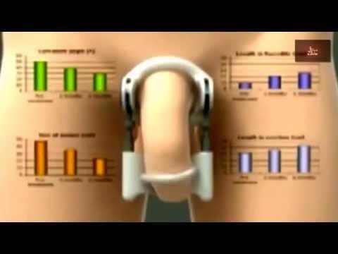 Как увеличить толщину члена, упражнения mediklendru