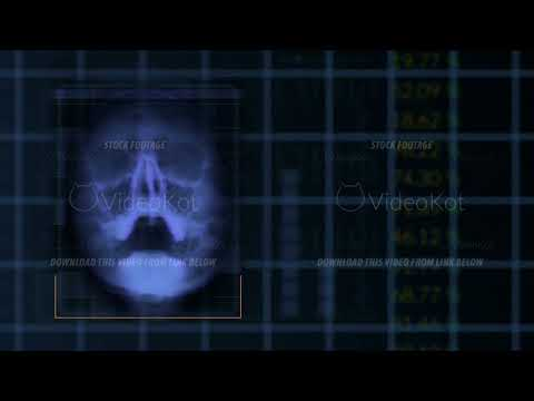 Scan of a human skull, looped Blue hud interface medical equipment