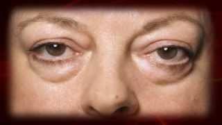 Debajo de los causan ojos severas bolsas