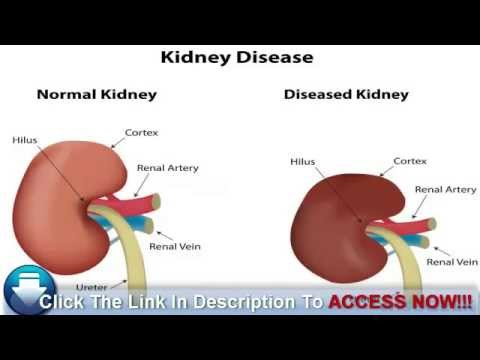 how to tell if kidney pain
