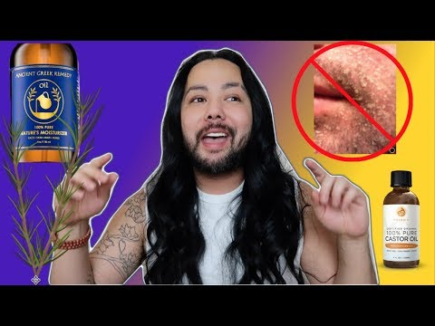 How I Treat My Face|Scalp Psoriasis Seborrheic Dermatitis Natural Home Remedies