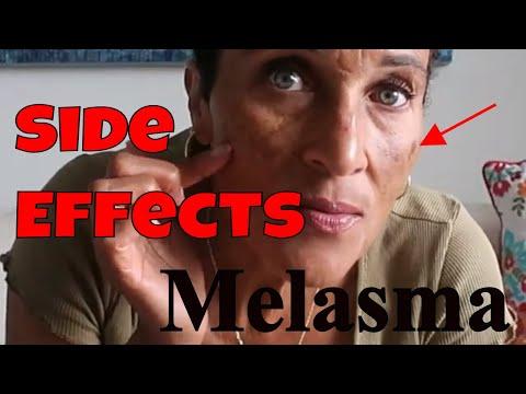 melasma-|-birth-control-side-effects-|-warning