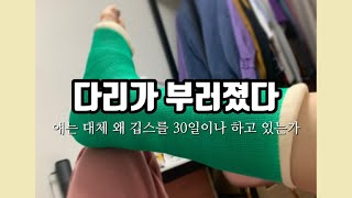 [갬수성일상] 오른발?? 파업함 / 30일의 깁스생활