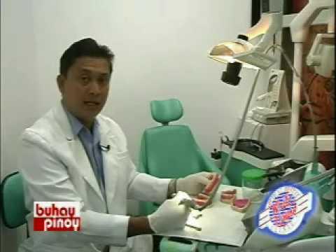 Philippine Dental Implants