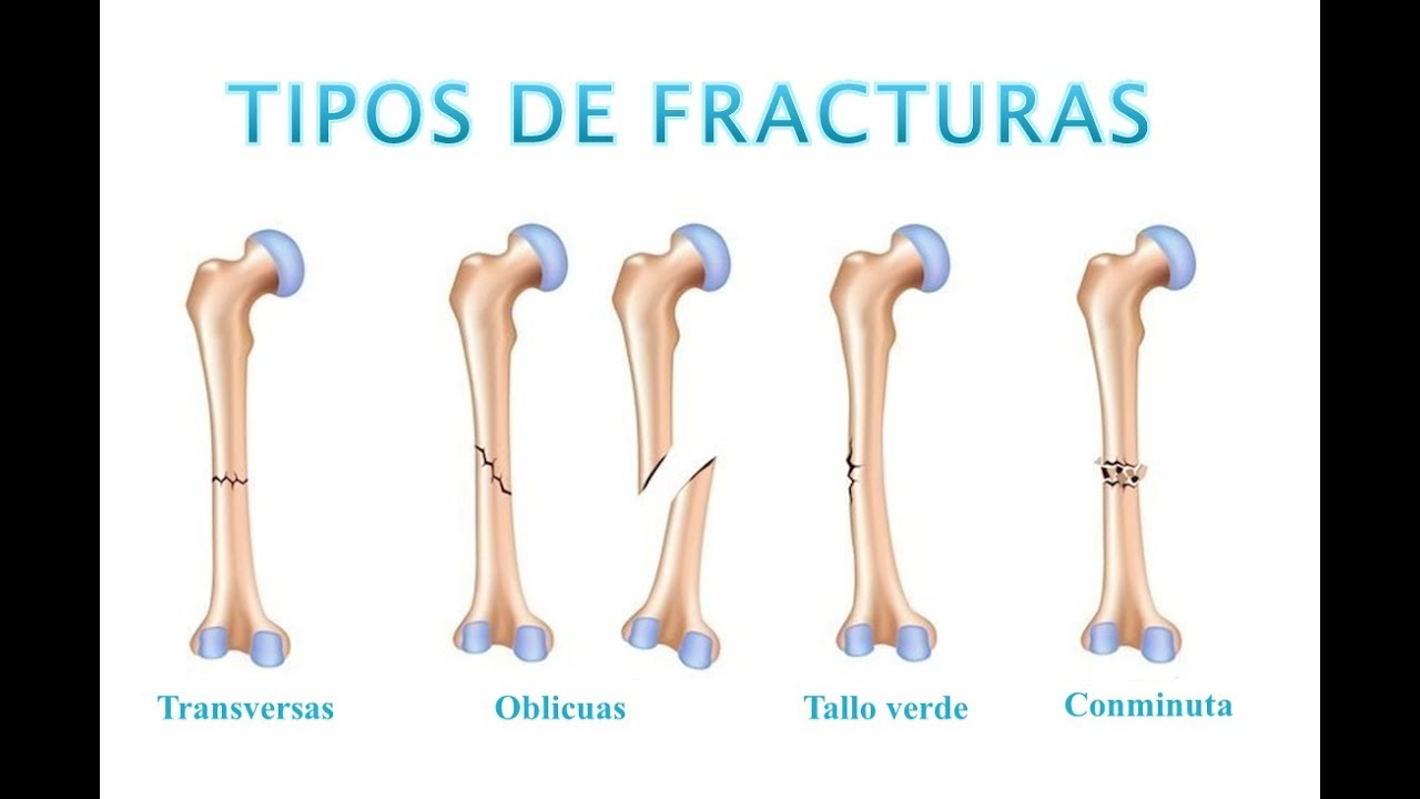 Tipos de fracturas youtube for Tipos de estanques para acuicultura